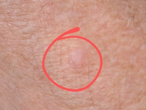 Skin-lesion
